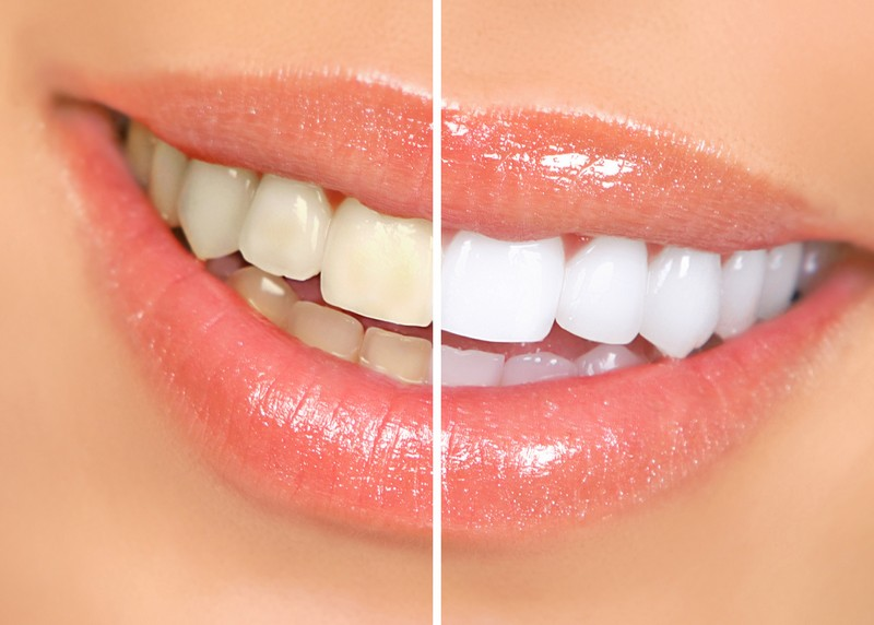 teeth whitening services Honolulu, HI
